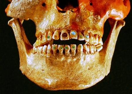 090518-jeweled-teeth-picture_big